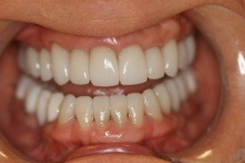 Dental Veneers and Neuromuscular Treatment