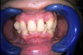 Full-Mouth Reconstruction and Dental Crowns