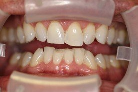 Patient 5 Dental Veneers