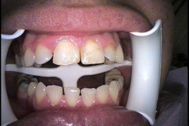 Patient 6 Dental Veneers
