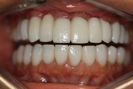 Full-Mouth Reconstruction, Neuromuscular Treatment, Dental Veneers and Dental Crowns Patient 1
