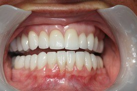 Patient 1 Dental Veneers