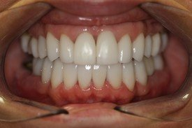Full-Mouth Reconstruction, Neuromuscular Treatment, Dental Veneers and Dental Crowns Patient 2