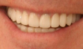 Full-Mouth Reconstruction, Neuromuscular Treatment, Dental Veneers and Dental Crowns Patient 3