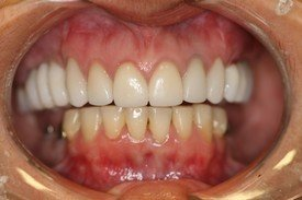 Full-Mouth Reconstruction, Neuromuscular Treatment and Dental Crowns
