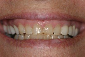 Patient 2 Dental Veneers