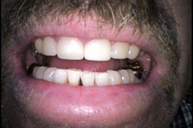 Patient 3 Dental Veneers