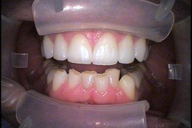 Patient 4 Dental Veneers